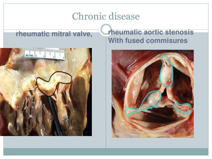 Chronic disease