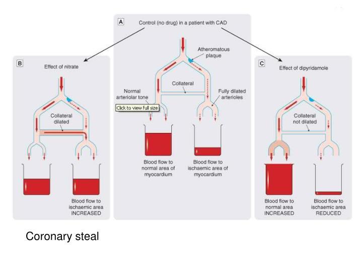 Coronary steal