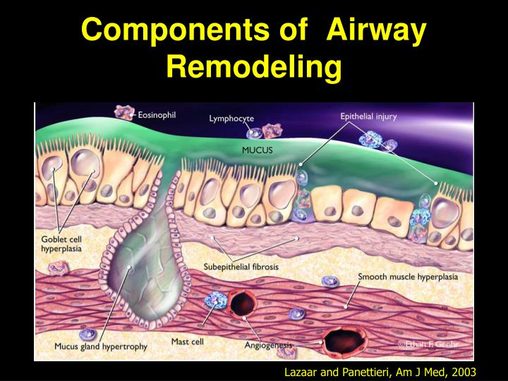 Components of  Airway Remodeling