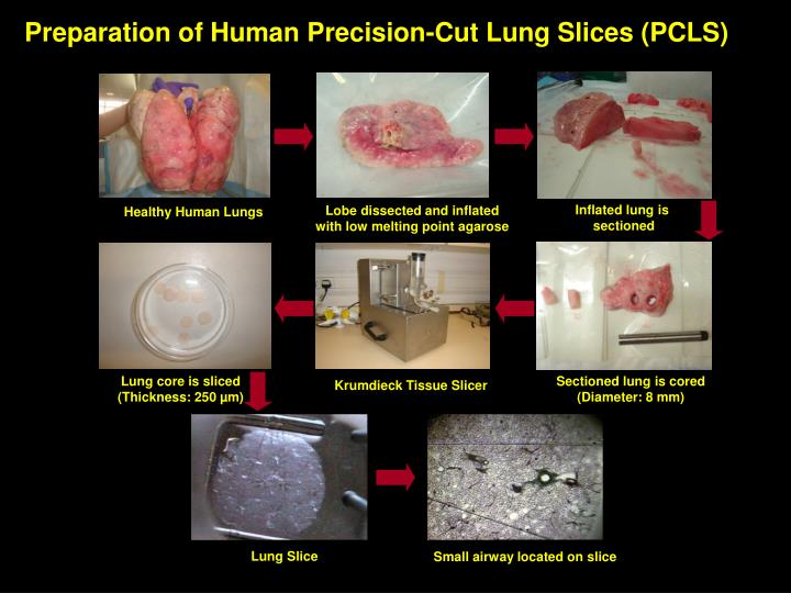 Preparation of Human Precision-Cut Lung Slices (PCLS)