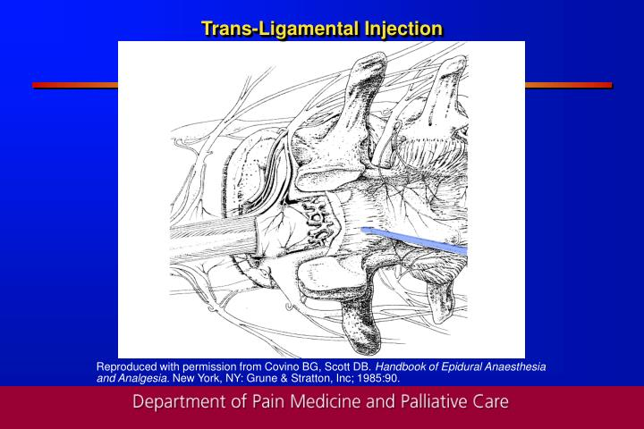 Trans-Ligamental Injection