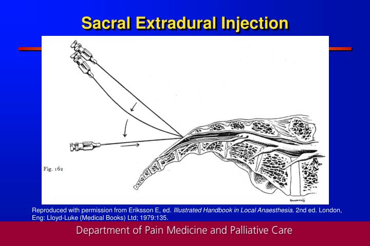 Sacral Extradural Injection