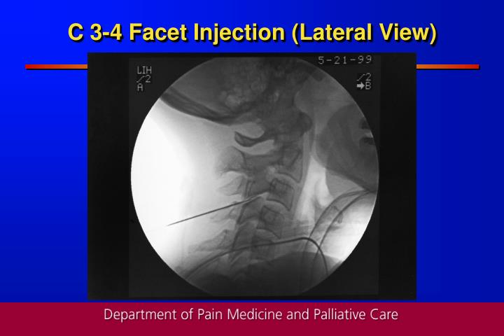 C 3-4 Facet Injection (Lateral View)