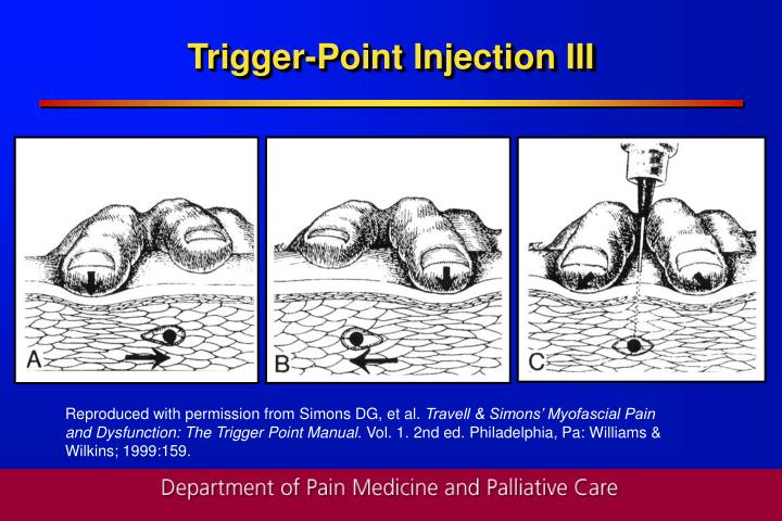Trigger-Point Injection III