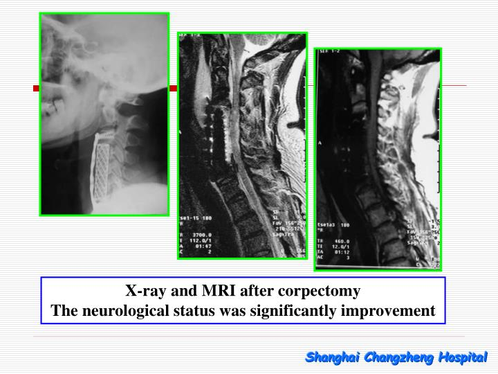 X-ray and MRI after corpectomy