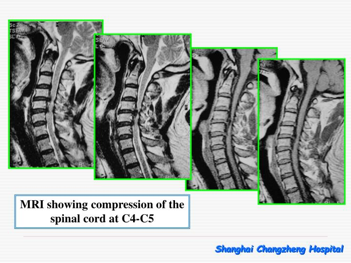 MRI showing compression of the spinal cord at C4-C5