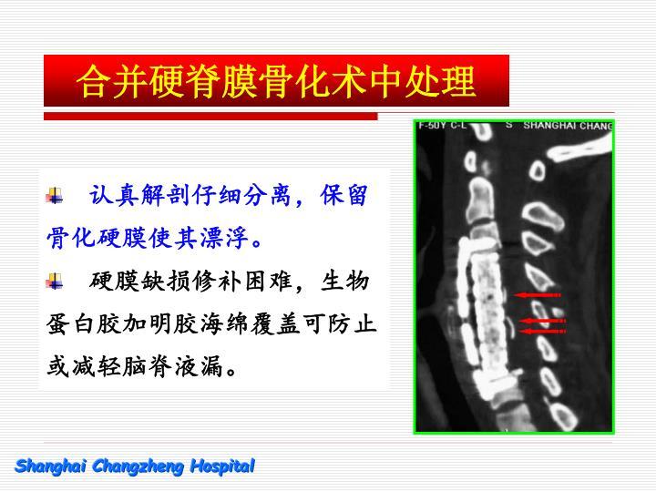 合并硬脊膜骨化术中处理