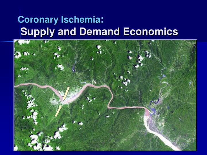 Coronary ischemia supply and demand economics1