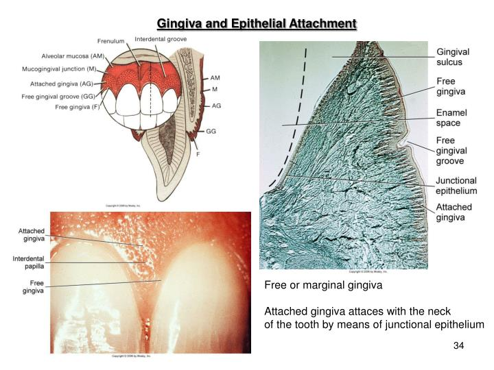 Gingiva and Epithelial Attachment