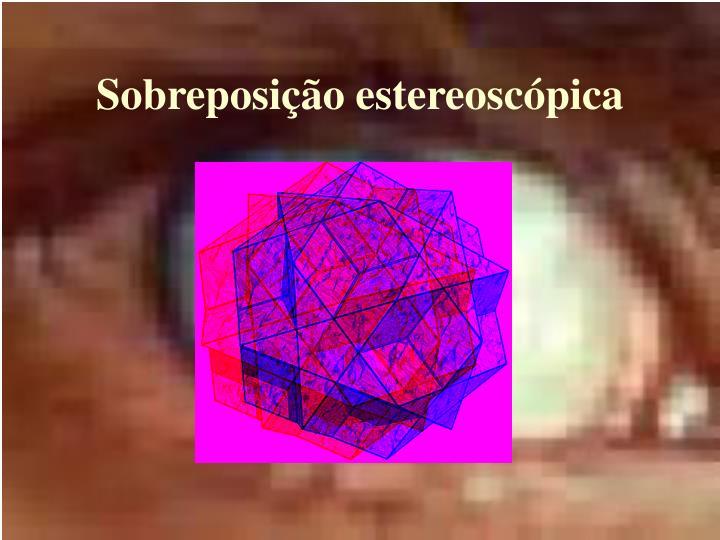 Sobreposição estereoscópica