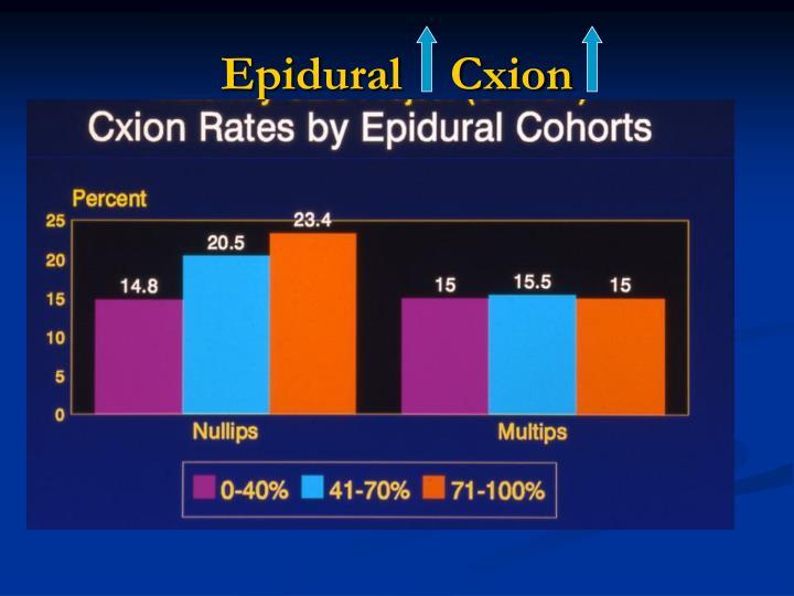 Epidural    Cxion
