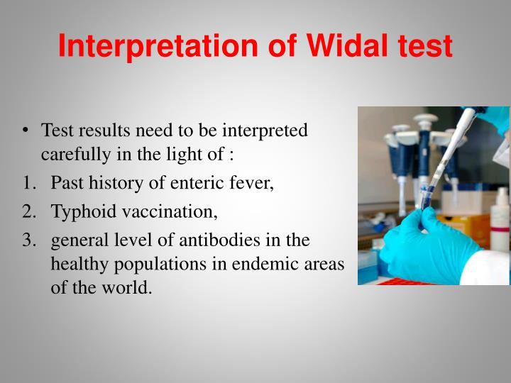 Interpretation of Widal test