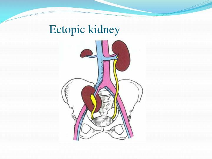 Ectopic kidney