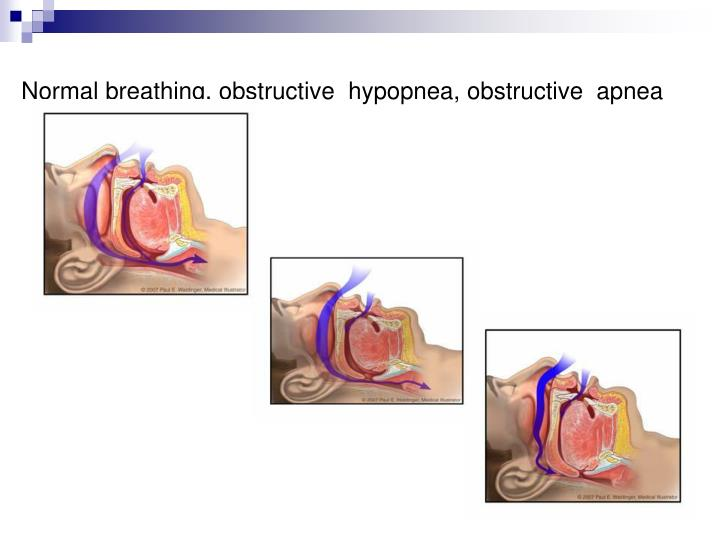 Normal breathing, obstructive  hypopnea, obstructive  apnea