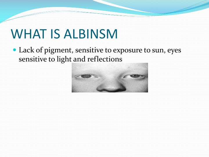 WHAT IS ALBINSM