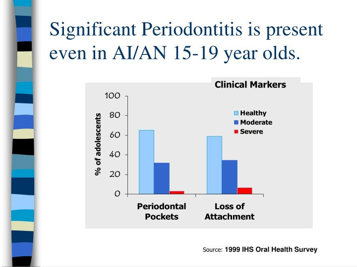 Significant Periodontitis is present even in AI/AN 15-19 year olds.