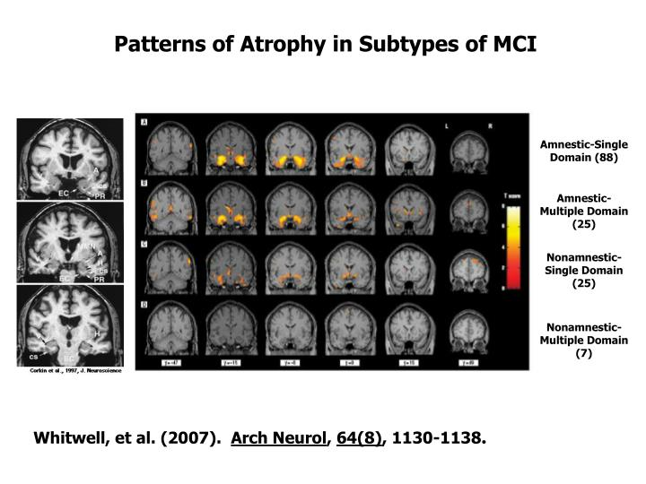 Patterns of Atrophy in Subtypes of MCI