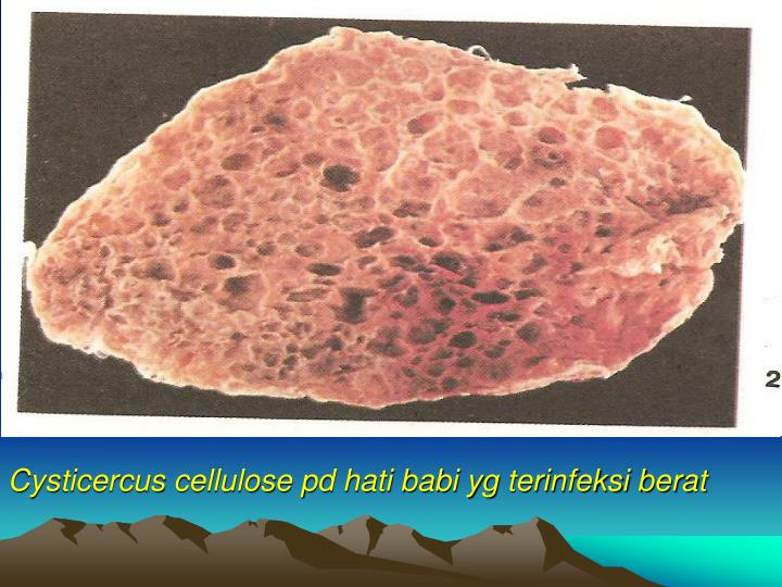 Cysticercus cellulose pd hati babi yg terinfeksi berat