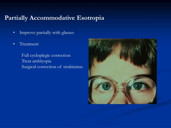 Partially Accommodative Esotropia