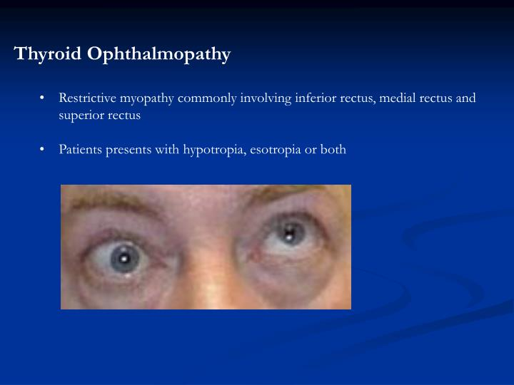 Thyroid Ophthalmopathy