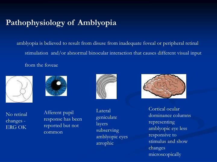 Pathophysiology of Amblyopia