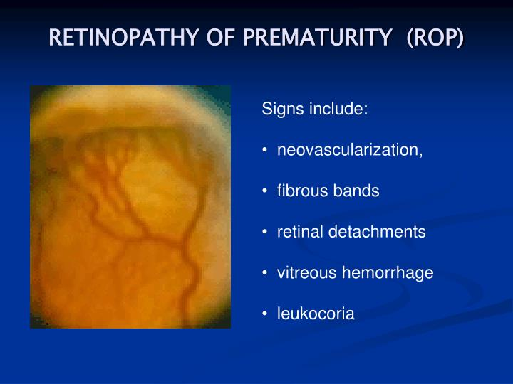 RETINOPATHY OF PREMATURITY  (ROP)