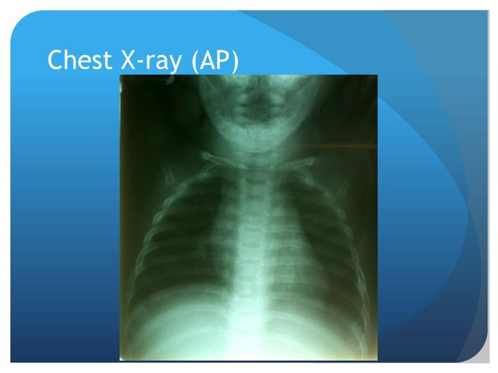 Chest X-ray (AP)