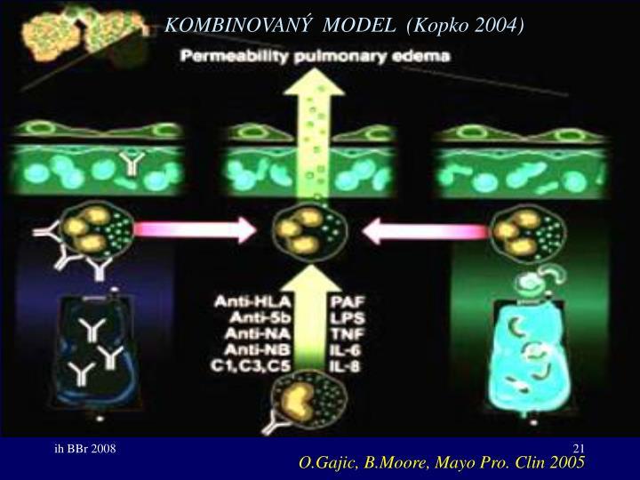 KOMBINOVANÝ  MODEL  (Kopko 2004)