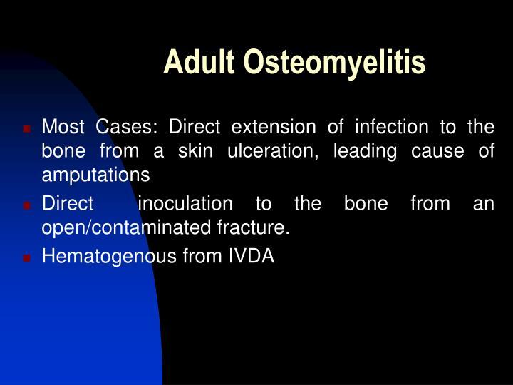Adult Osteomyelitis