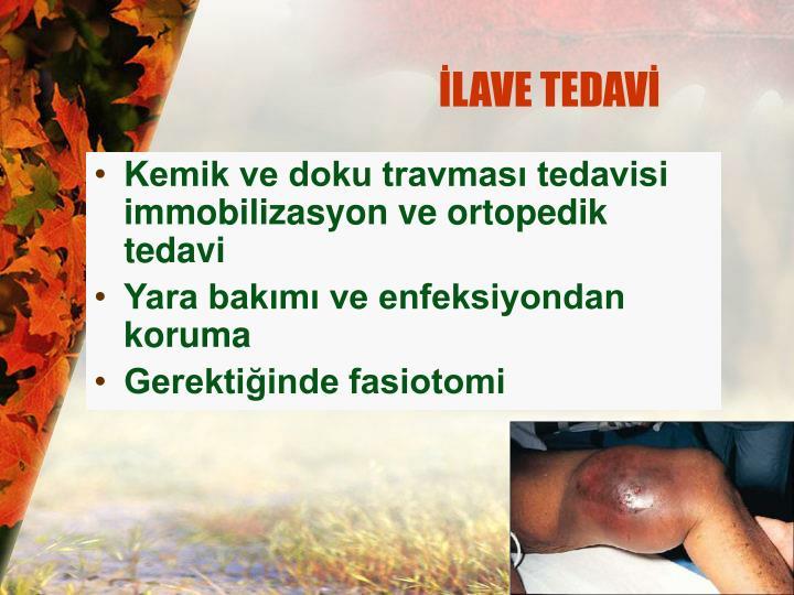 İLAVE TEDAVİ