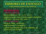 tumores de esofago carcinoma celulas escamosas10