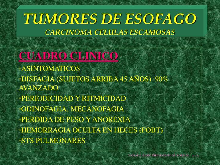 TUMORES DE ESOFAGO