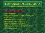 tumores de esofago carcinoma celulas escamosas3