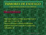 tumores de esofago carcinoma celulas escamosas5