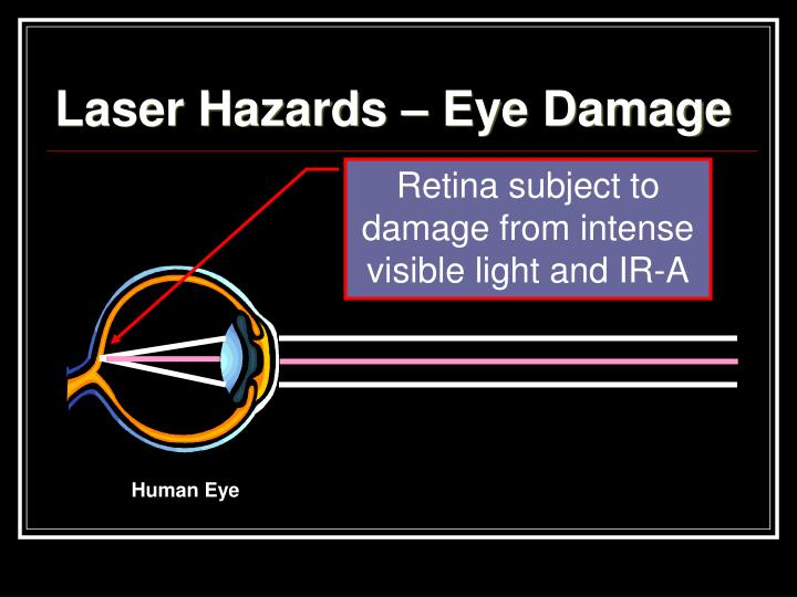 Laser Hazards – Eye Damage