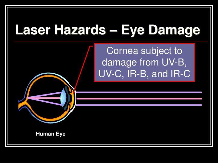 Laser Hazards – Eye Damage