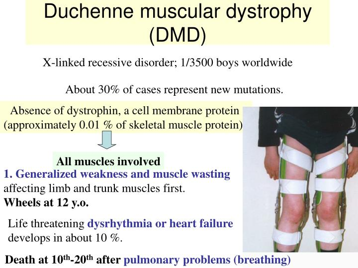 an analysis of the neuromuscular disorder and muscular dystrophy Duchenne muscular dystrophy: a cerebellar disorder neuromuscular junction meta-analysis reveals that it is on average one standard.