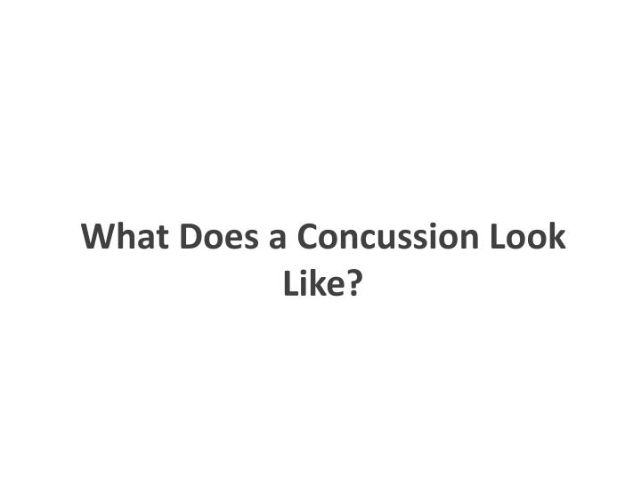 What Does a Concussion Look Like?