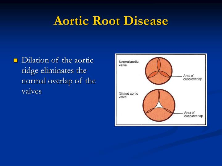 Aortic Root Disease