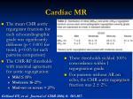 cardiac mr2