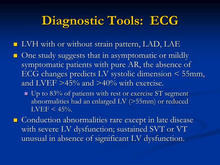 Diagnostic Tools:  ECG