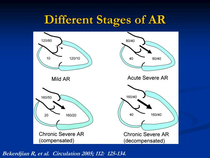 Different Stages of AR