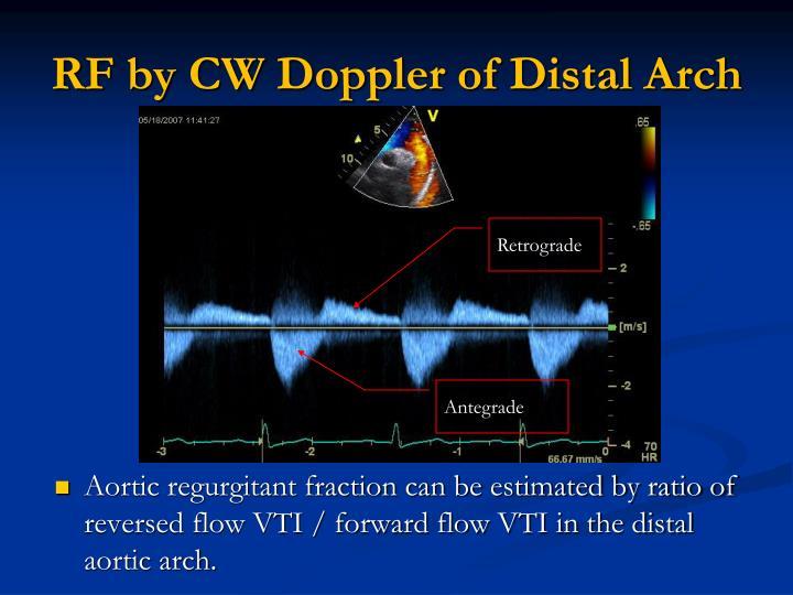 RF by CW Doppler of Distal Arch