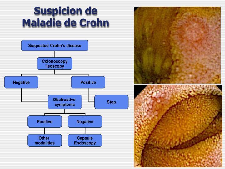 syndrome de crohn