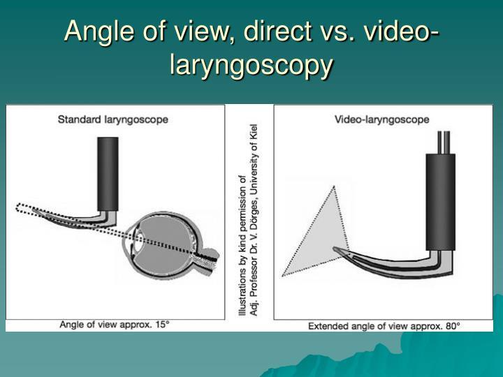 Angle of view, direct vs. video-laryngoscopy