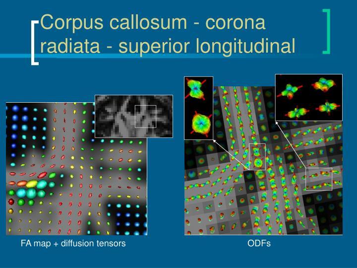 Corpus callosum - corona radiata - superior longitudinal