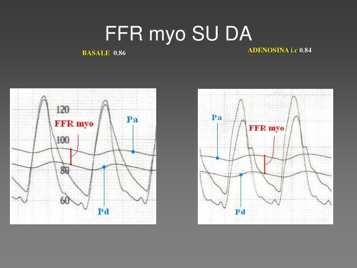 FFR myo SU DA