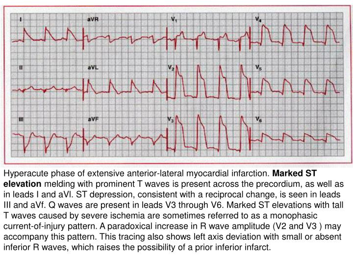 Hyperacute phase of extensive anterior-lateral myocardial infarction.