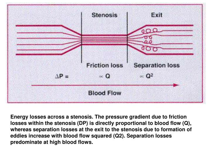 Energy losses across a stenosis. The pressure gradient due to friction losses within the stenosis (DP) is directly proportional to blood flow (Q), whereas separation losses at the exit to the stenosis due to formation of eddies increase with blood flow squared (Q2). Separation losses predominate at high blood flows.