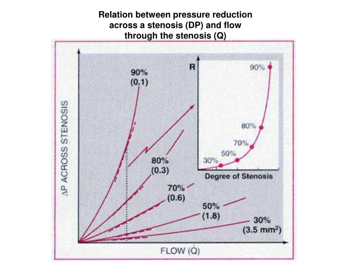 Relation between pressure reduction across a stenosis (DP) and flow through the stenosis (Q)